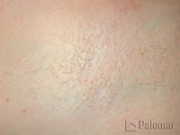 laser hair removal underarm after